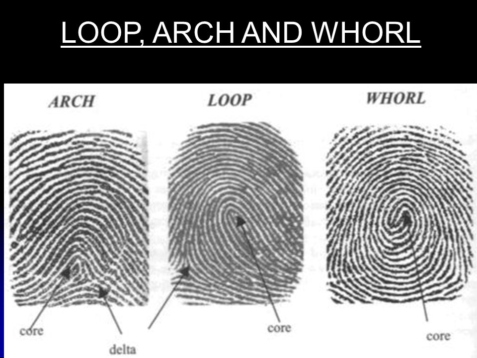 LOOP, ARCH AND WHORL