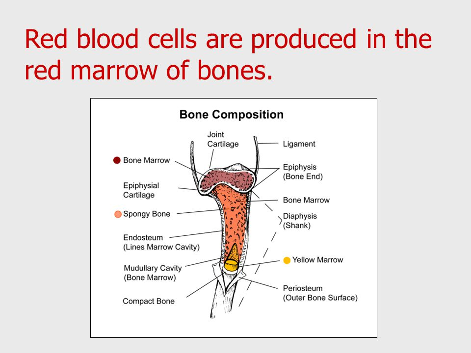 red blood cell and red bone What is hemolytic anemia hemolytic anemia is a low level of circulating red blood cells due to its premature and often excessive destruction the rate at which the red blood cells are destroyed are greater than the rate of its production in the bone marrow.