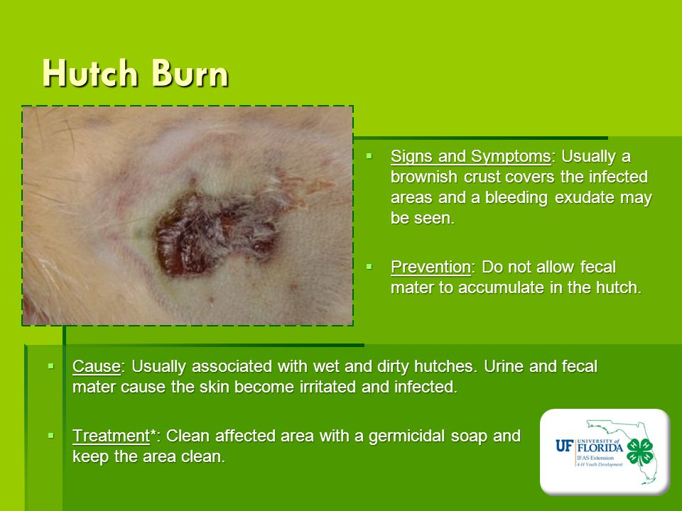 how to clean an infected burn