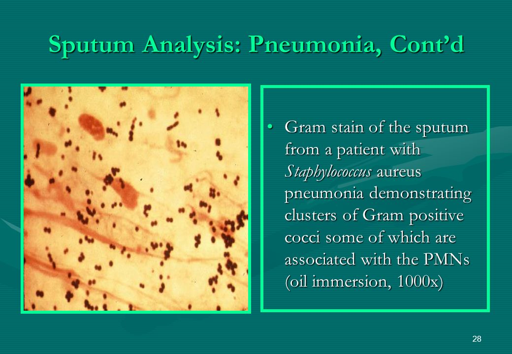 an introduction to the analysis of pneumonia Uniquely positioned at the interface between respiratory medicine and infectious diseases, pneumonia is the only journal to focus exclusively on pneumonia.