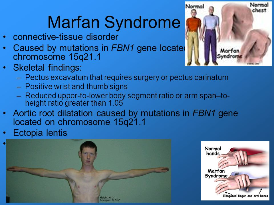an introduction to the issue of marfans syndrome a disorder of connective tissue