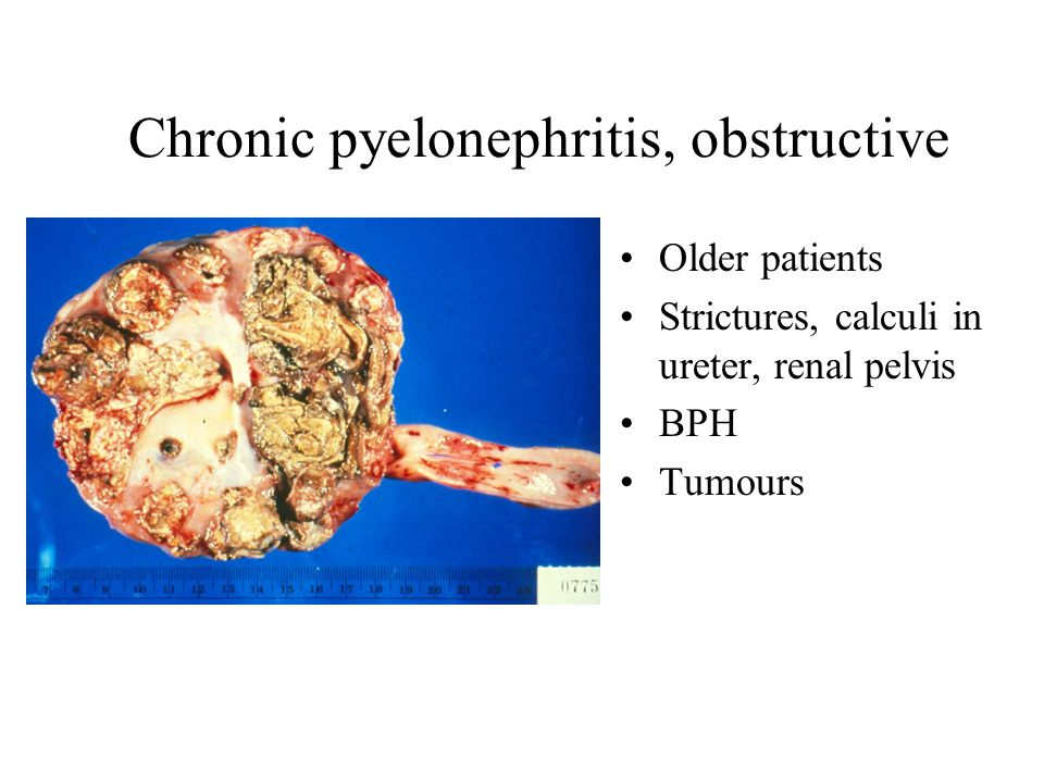 chronic pyelonephritis - photo #20