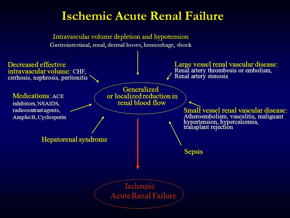 Ischemic Acute Renal Failure Categories Of