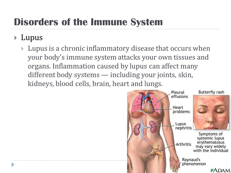 Disorders of the Immune System