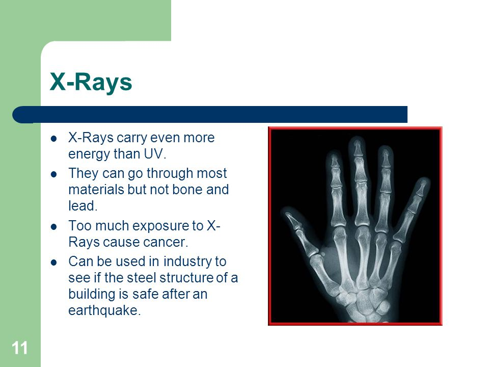 X-Rays X-Rays carry even more energy than UV.