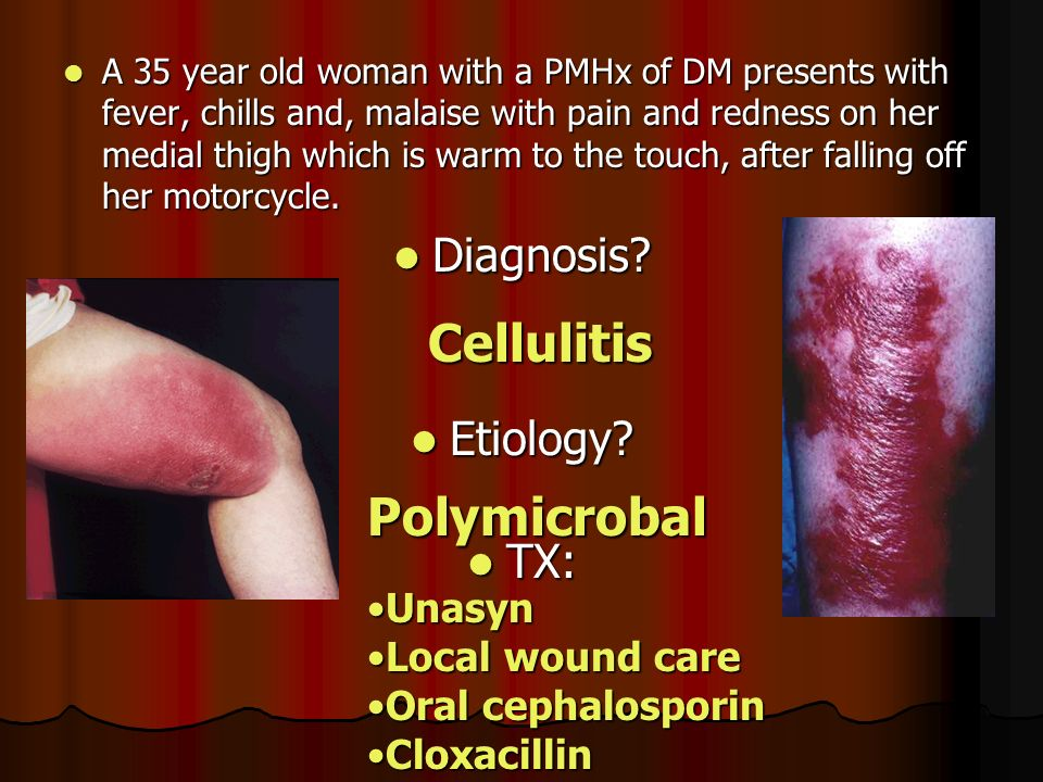 Orbital Cellulitis in Adults: Causes, Symptoms, Diagnosis, Treatment