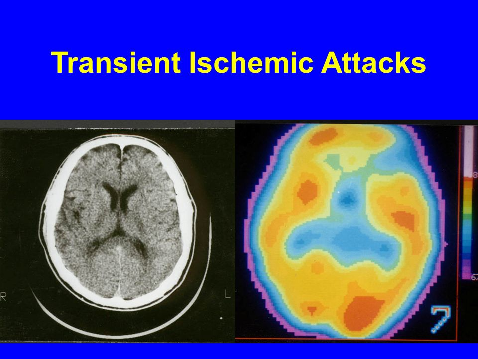 Transient Ischemic Attacks