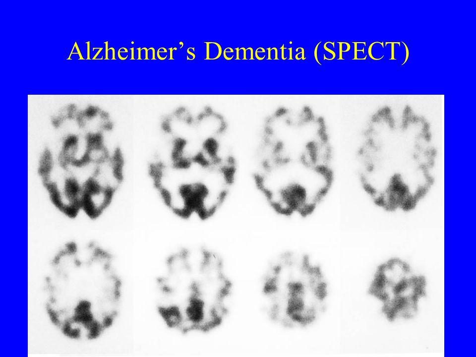 Alzheimer's Dementia (SPECT)
