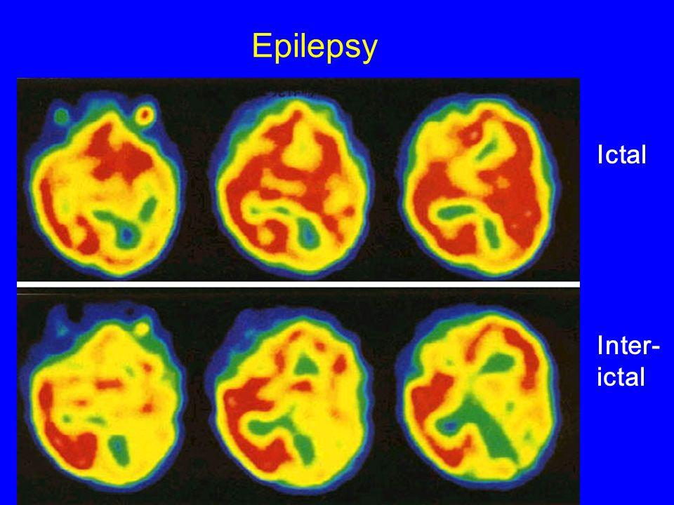 Epilepsy Ictal Inter-ictal