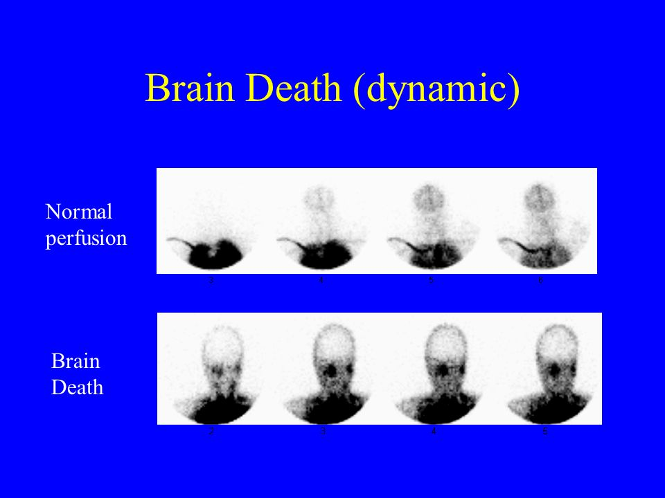 Brain Death (dynamic) Normal perfusion Brain Death