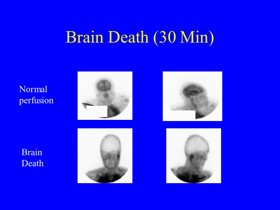 Brain Death (30 Min) Normal perfusion Brain Death