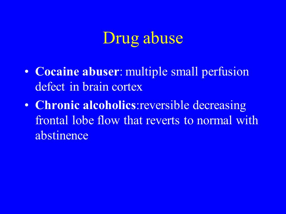 Drug abuse Cocaine abuser: multiple small perfusion defect in brain cortex.