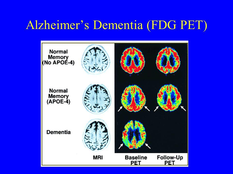 Alzheimer's Dementia (FDG PET)