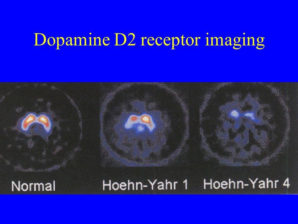 Dopamine D2 receptor imaging