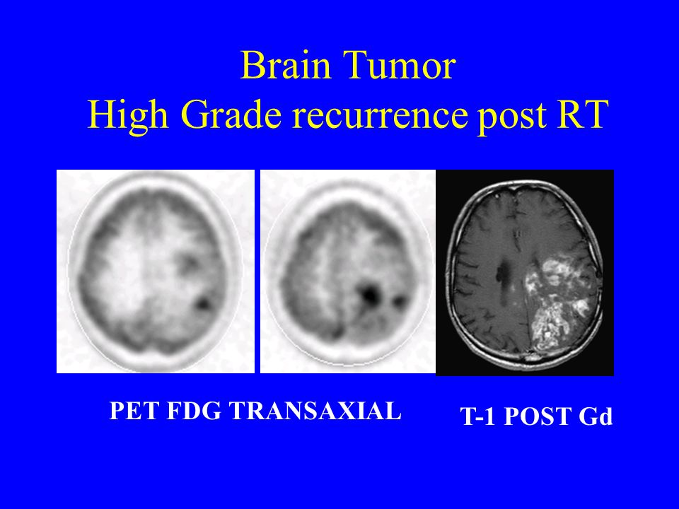 Brain Tumor High Grade recurrence post RT