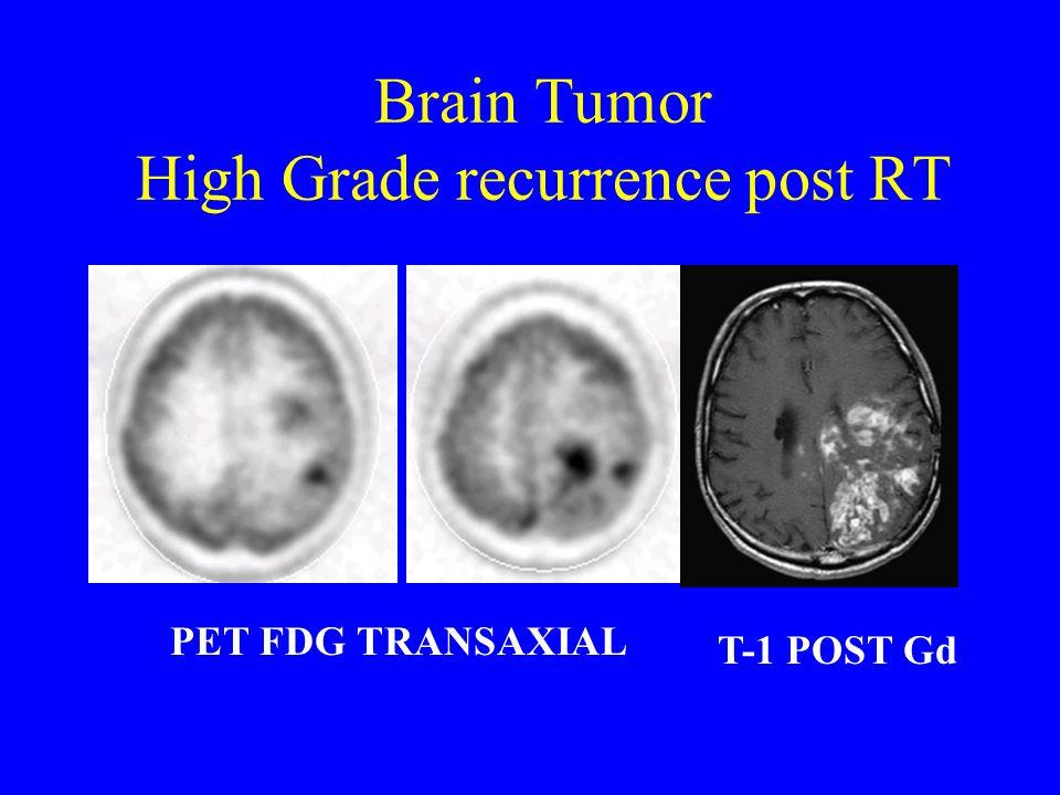Brain Tumor High Grade recurrence post RT