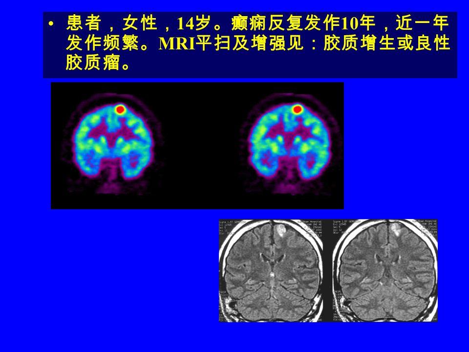 患者,女性,14岁。癫痫反复发作10年,近一年发作频繁。MRI平扫及增强见:胶质增生或良性胶质瘤。