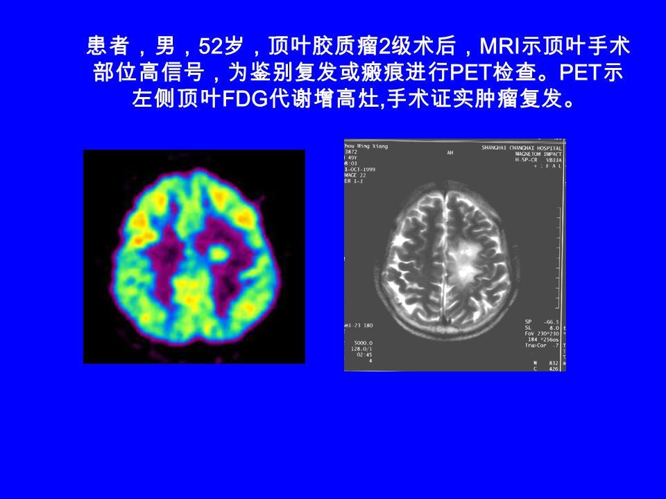 患者,男,52岁,顶叶胶质瘤2级术后,MRI示顶叶手术部位高信号,为鉴别复发或瘢痕进行PET检查。PET示左侧顶叶FDG代谢增高灶,手术证实肿瘤复发。
