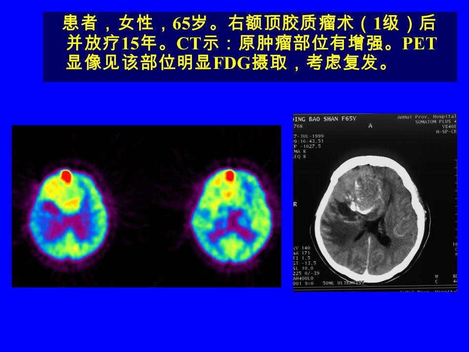 患者,女性,65岁。右额顶胶质瘤术(1级)后并放疗15年。CT示:原肿瘤部位有增强。PET显像见该部位明显FDG摄取,考虑复发。