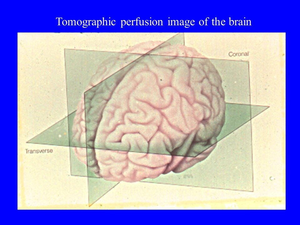 Tomographic perfusion image of the brain