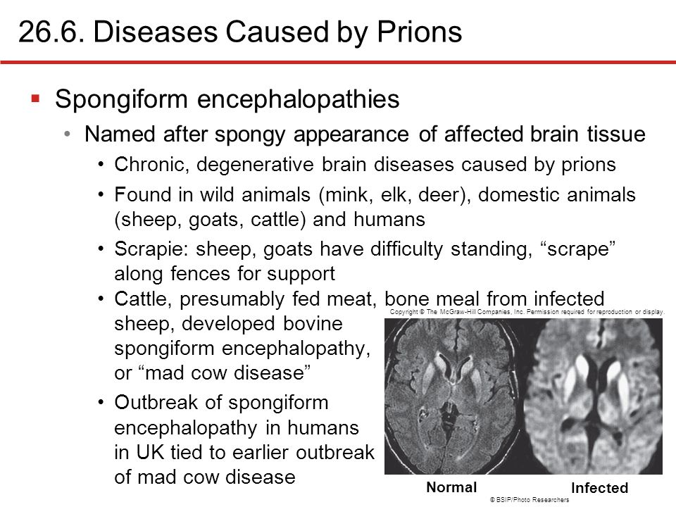 an overview of the mad cow disease or scrapie Scrapie is a fatal, degenerative disease that affects the nervous systems of sheep and goatsit is one of several transmissible spongiform encephalopathies (tses), which are related to bovine spongiform encephalopathy (bse or mad cow disease) and chronic wasting disease of deer like other spongiform encephalopathies, scrapie is caused by a.