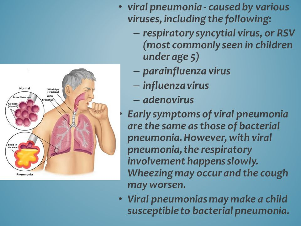viral pneumonia - caused by various viruses, including the following: