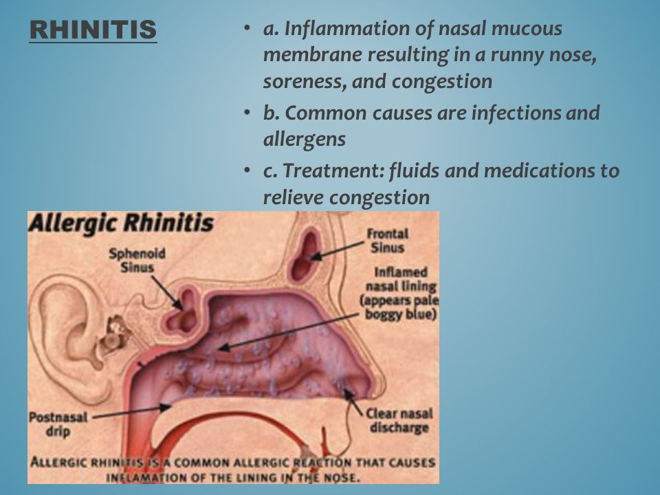 Rhinitis a. Inflammation of nasal mucous membrane resulting in a runny nose, soreness, and congestion.