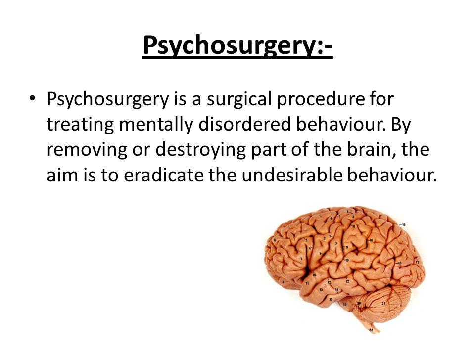 Lobotomy a historical procedure