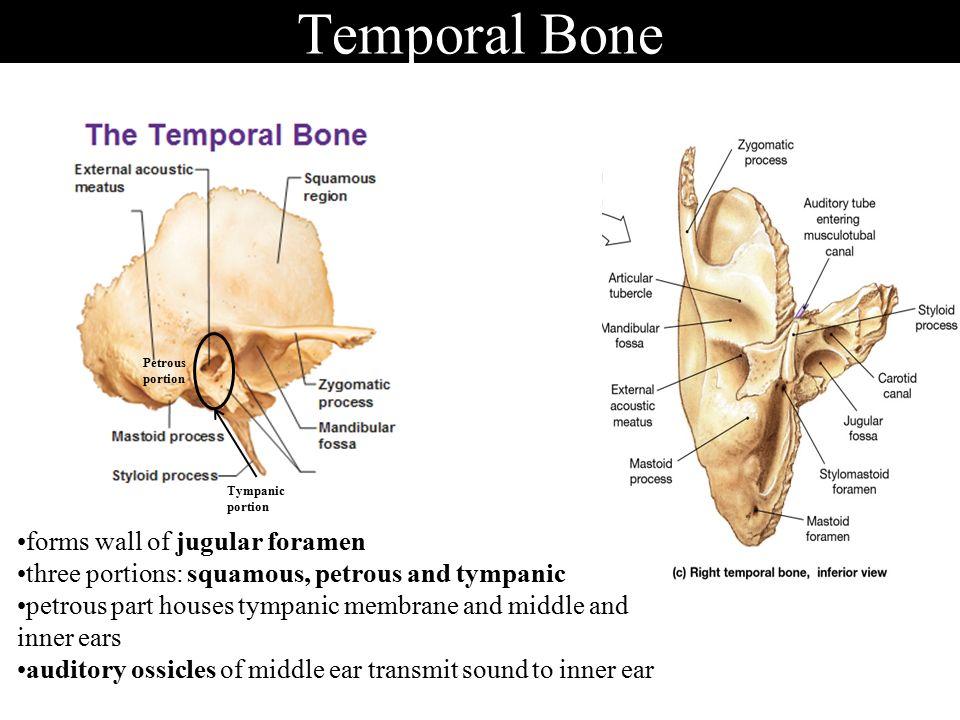 Temporal Bone Jugular Foramen