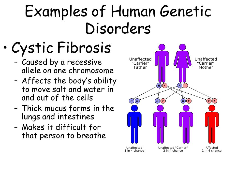 cystic fibrosis a genetic disorder