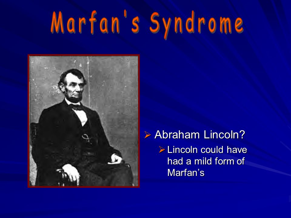 a clinical description of the marfans syndrome A smaller group of children will have hypermobility associated with a more concerning syndrome the clinical  hypermobility in children  clinical description.