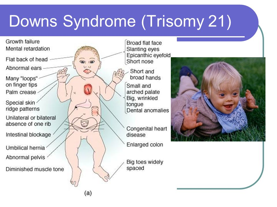 Serum and Urine Marker Screening for Down Syndrome