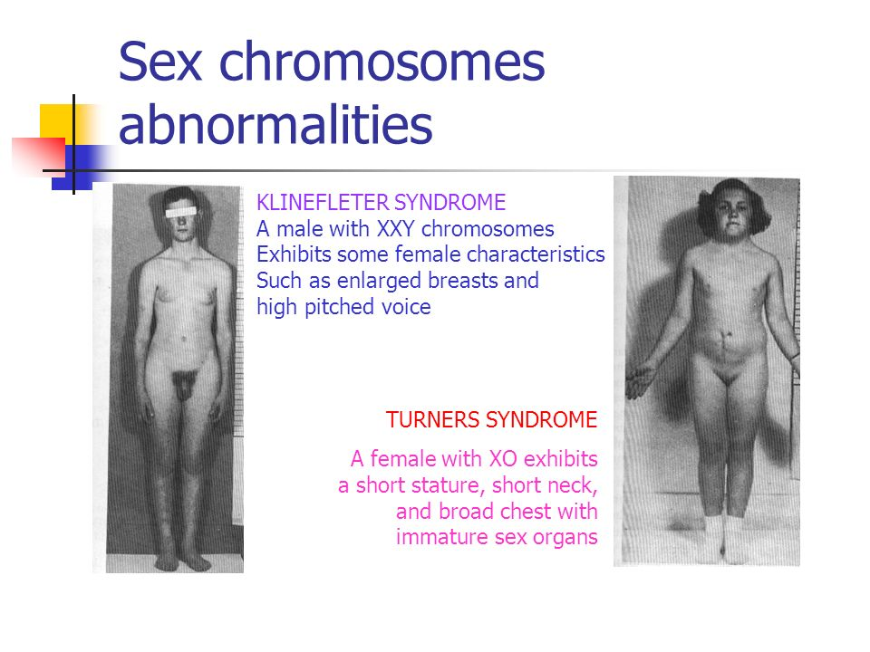 sexual organ abnormalities