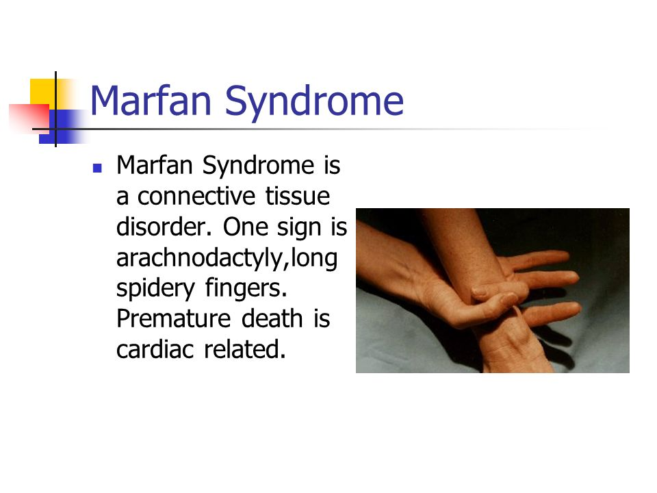 marfan syndrome essays