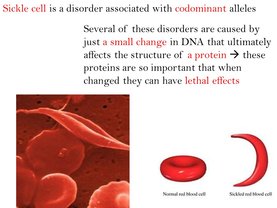 Sickle cell is a disorder associated with codominant alleles