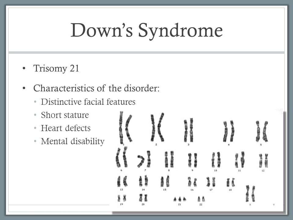 the characteristics of down syndrome a genetic disorder Down syndrome is a genetic disorder caused when abnormal cell division results in an extra full or partial copy of chromosome 21 this extra genetic material causes.