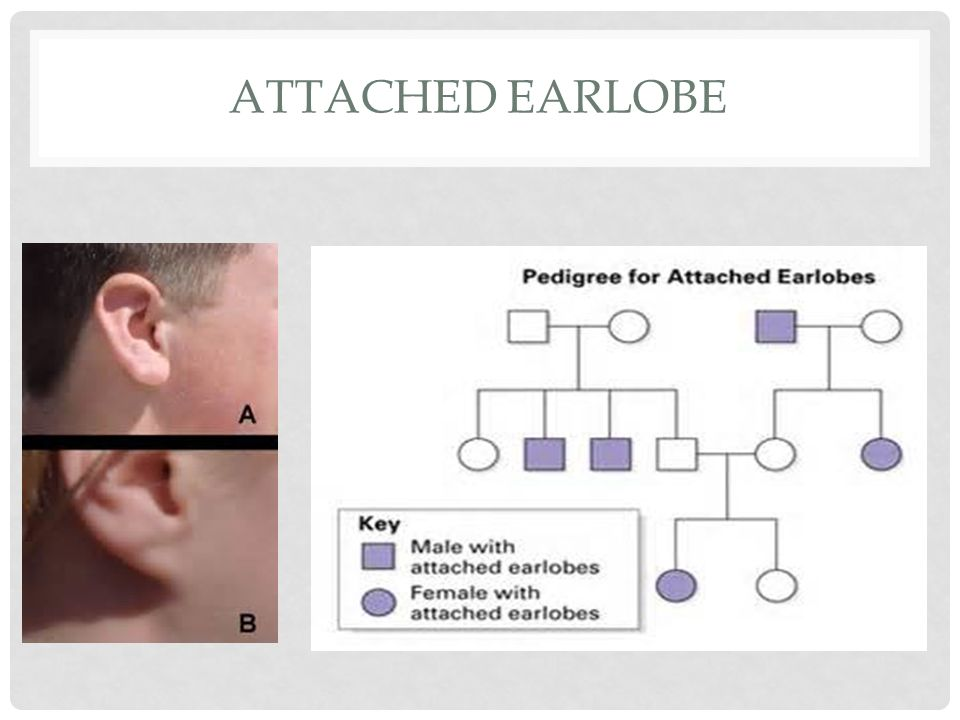 Attached earlobe