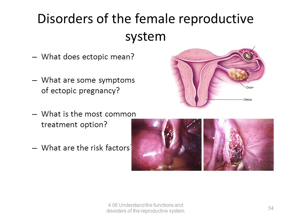 4.06 understand the functions and disorders of the reproductive, Muscles
