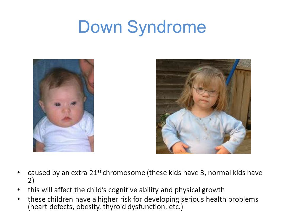 Down Syndrome caused by an extra 21st chromosome (these kids have 3, normal kids have 2)