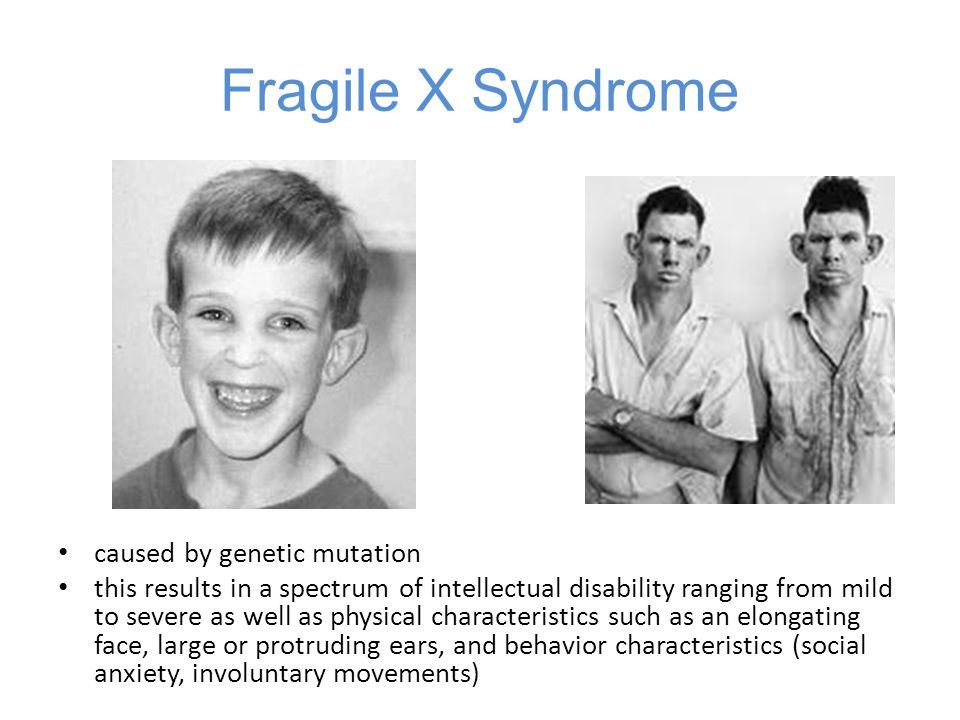 Fragile X Syndrome caused by genetic mutation