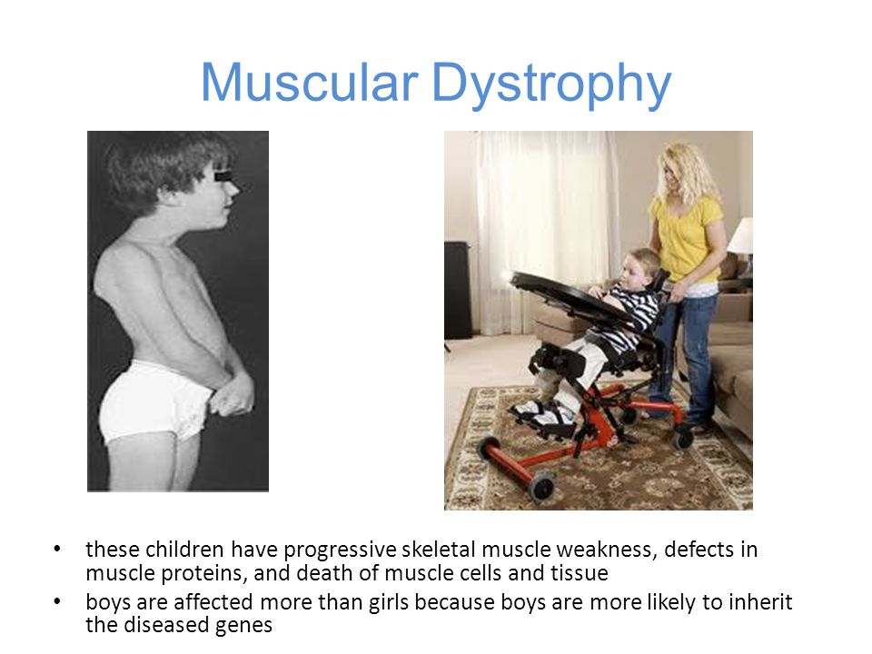 Muscular Dystrophy these children have progressive skeletal muscle weakness, defects in muscle proteins, and death of muscle cells and tissue.