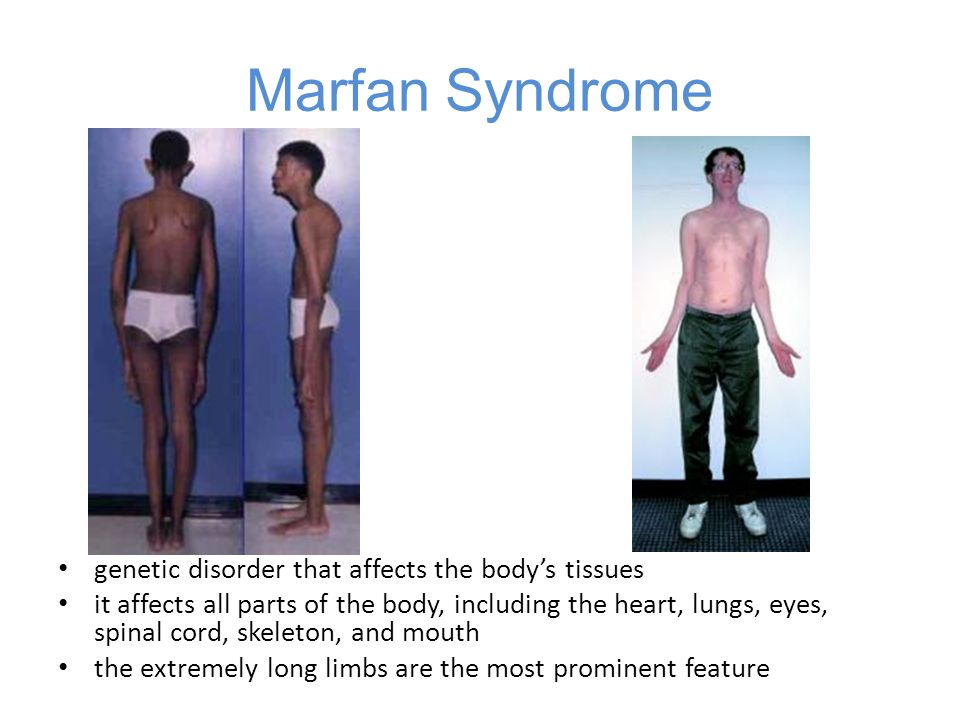 Marfan Syndrome genetic disorder that affects the body's tissues