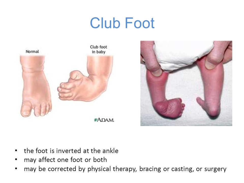 Club Foot the foot is inverted at the ankle