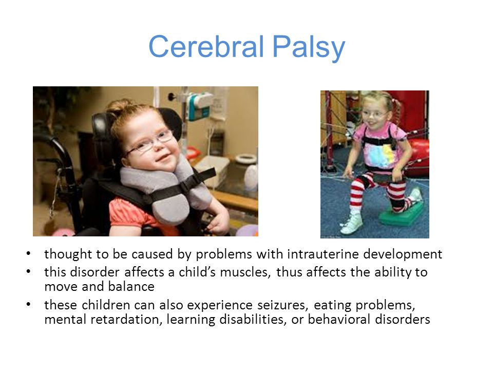 Cerebral Palsy thought to be caused by problems with intrauterine development.