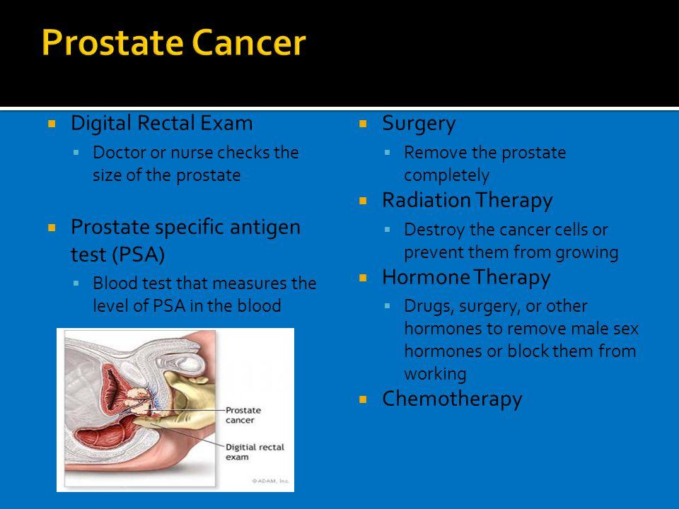 Prostate Exam Non-Infectious ...