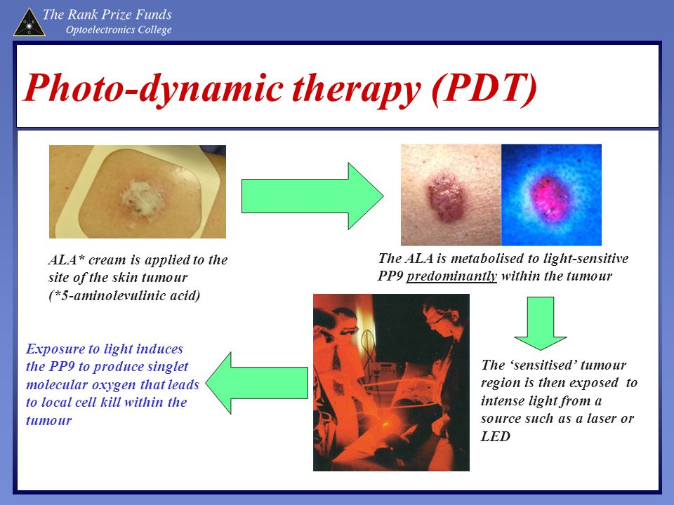 Photo-dynamic therapy (PDT)