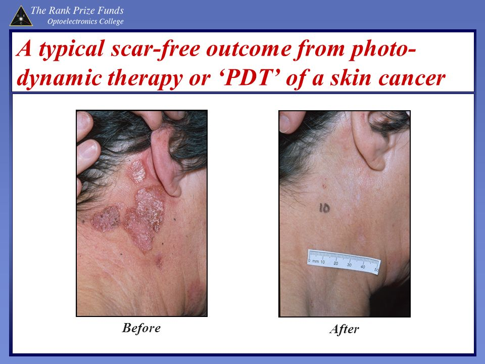 A typical scar-free outcome from photo-dynamic therapy or 'PDT' of a skin cancer