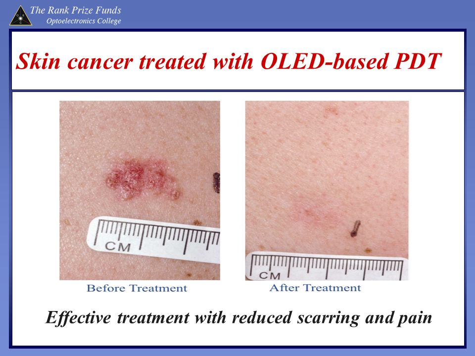 Skin cancer treated with OLED-based PDT