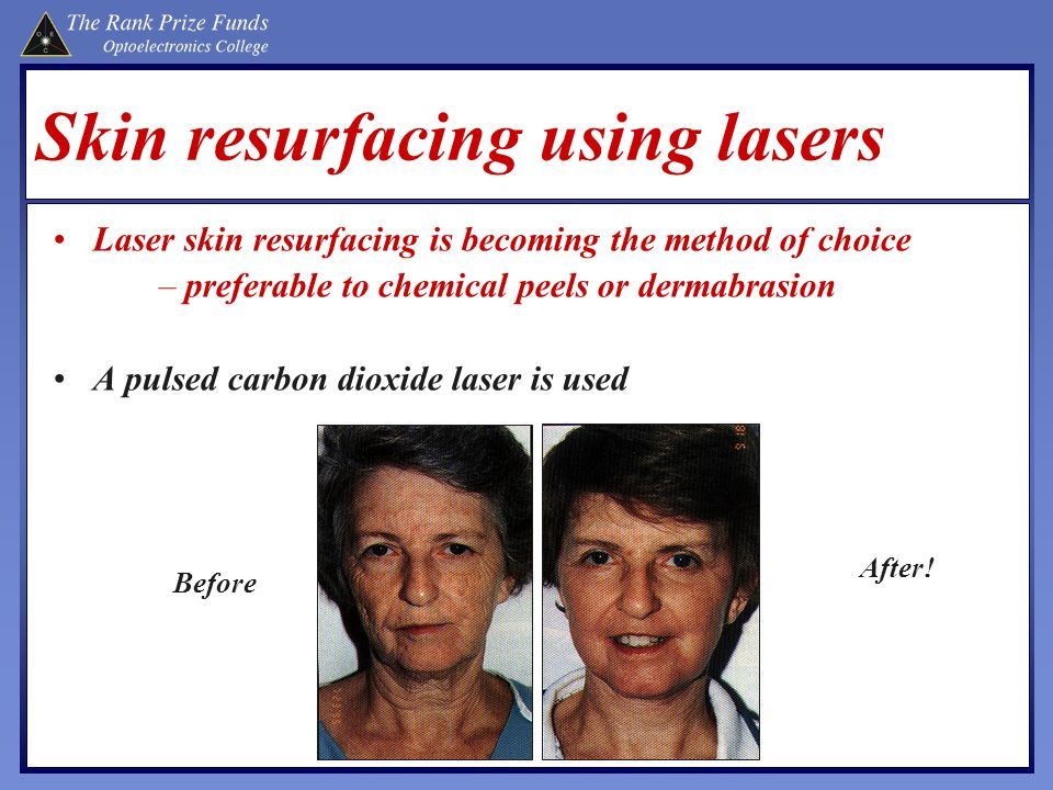 Skin resurfacing using lasers