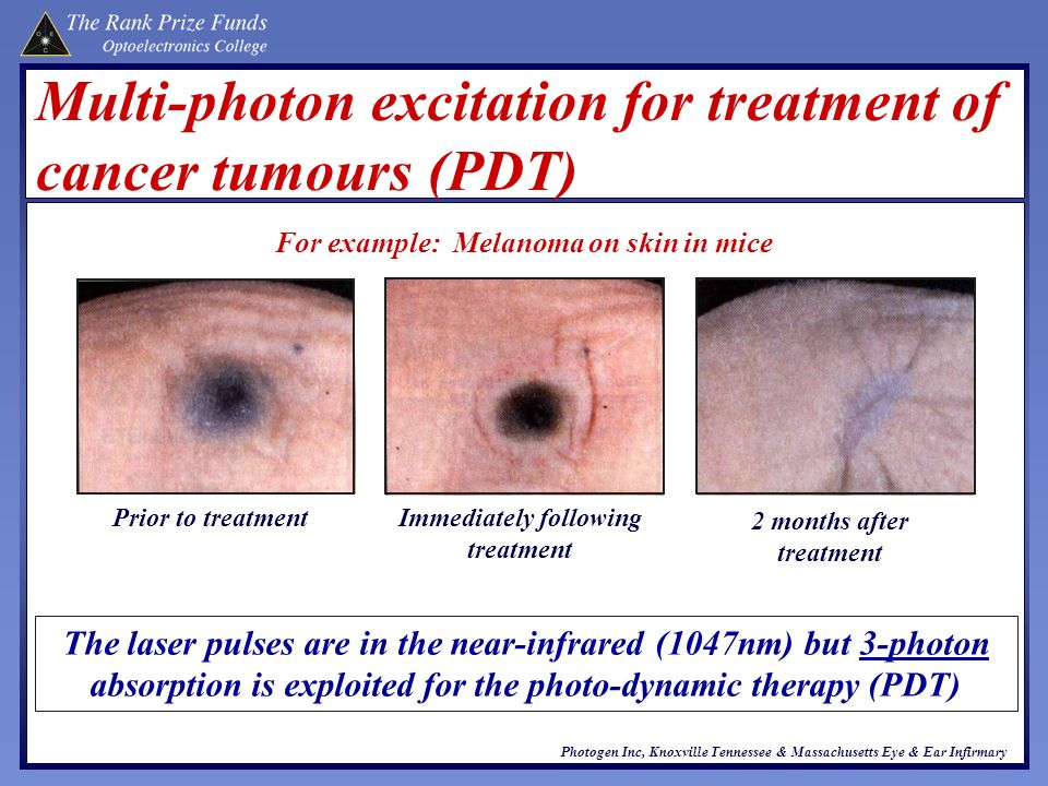 Multi-photon excitation for treatment of cancer tumours (PDT)